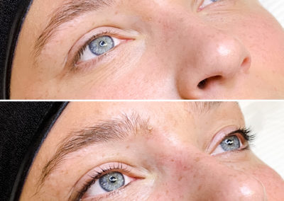 Before and after lash lift